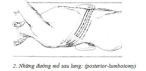 Lua chon duong mo than lay soi