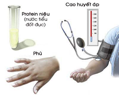 protein nieu